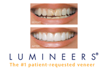 Lumineers™ Dentist